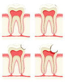 Tooth stock photos