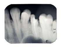Tooth. Real x-ray picture of the broken tooth, isolated on a white background Royalty Free Stock Images
