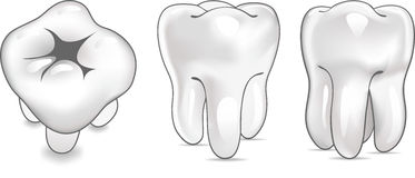 Tooth in 3 views Stock Photography