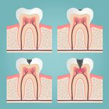 Tooth anatomy. And damage, cut teeth in the gums vector illustration Stock Photography