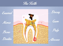 The tooth anatomy Stock Images