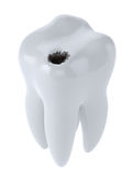 Tooth with black hole caries Royalty Free Stock Photography