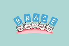 Tooth with brace holding billboards Royalty Free Stock Images