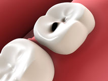 Tooth caries. 3d rendering of human denture Stock Images