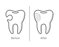 Tooth before and after caries Royalty Free Stock Photo