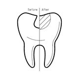 Tooth before and after caries Royalty Free Stock Photos