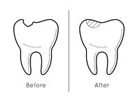 Tooth before and after caries Stock Photo