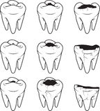 Tooth Caries vector icon. Outline Royalty Free Stock Image