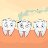 Tooth Caries. Vector Illustration of smell teeth because of caries Stock Images