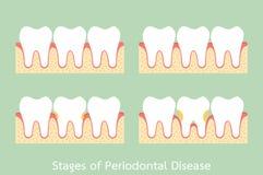 Step of periodontal disease / periodontitis / gingivitis / gum disease, dental problem. Tooth cartoon vector flat style for design - step of periodontal disease vector illustration