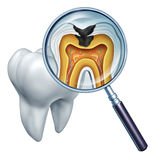 Tooth Cavity Close Up. And cavities symbol showing a magnifying glass with a cross section of a tooth anatomy in decay due to bacteria and acids in oral health Stock Image