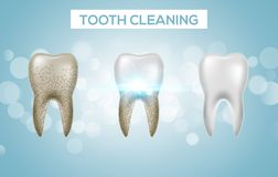 Tooth clean 3d health. Dental realistic dirty whitening. Dentist teeth hygiene isolated medicine template.  royalty free illustration