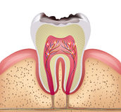 Tooth cross section with dental caries Royalty Free Stock Photos