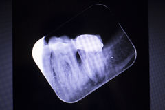 Tooth crown root canal Royalty Free Stock Images