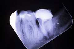 Tooth crown root canal Royalty Free Stock Photography