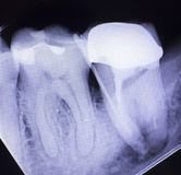 Tooth crown root canal. Dental xray test scan of tooth with crown filling and root canal infection inflamation of molar back teeth royalty free stock image