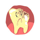 Tooth decay cartoon character with sad face vector Illustration Royalty Free Stock Photos