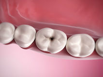Tooth decay. 3d rendered illustration of tooth decay Royalty Free Stock Photos
