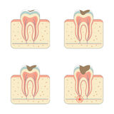 Tooth decay disease Royalty Free Stock Photo