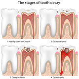 Tooth decay, eps8. Stages of Tooth decay, eps8, gradient and mesh printing compatible Royalty Free Stock Photos
