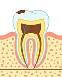 Tooth decay Royalty Free Stock Images