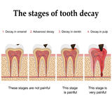 Tooth decay formation Stock Photography