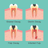Tooth decay. Four types of tooth decay, vector Royalty Free Stock Photography