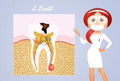 The tooth decay. Illustration of the tooth decay scheme Stock Photography