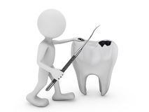 Tooth decay Royalty Free Stock Photos