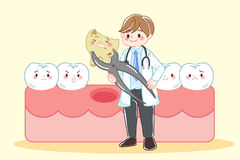 Tooth decay problem Stock Image