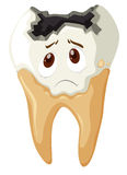 Tooth decay with sad face Royalty Free Stock Photography