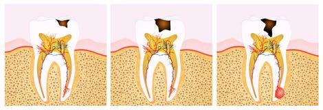 Free Tooth Decay Scheme Stock Photos - 58166933