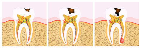 Tooth decay scheme. Illustration of the tooth decay scheme Stock Photos