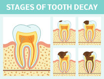 Tooth decay stages Royalty Free Stock Image