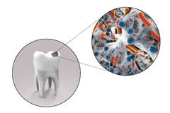 Tooth with dental caries Stock Image