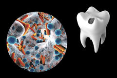 Tooth with dental caries Stock Photo