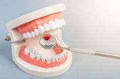 Tooth dental caries on denture with equipment dental. stock image