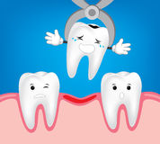 Tooth dental extraction, removal of tooth. Stock Image
