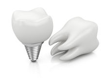 Tooth and dental implant Royalty Free Stock Photo