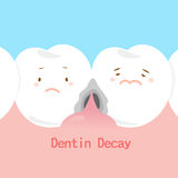 Tooth with dentin decay Royalty Free Stock Photography
