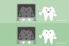 Tooth dentist x-ray healthy and unhealthy teeth Stock Images