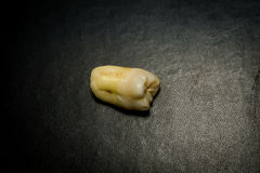 Tooth After Extraction. Human wisdom tooth after extraction is completed stock photography