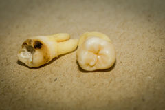 Tooth After Extraction. Human wisdom tooth after extraction is completed royalty free stock images