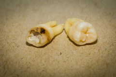Tooth After Extraction. Human wisdom tooth after extraction is completed stock image