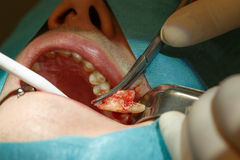 Tooth extraction without using forceps Stock Photography