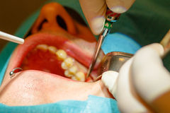 Tooth extraction without using forceps Stock Images