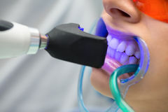 Tooth filling ultraviolet lamp Royalty Free Stock Image