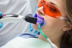 Tooth filling ultraviolet lamp Royalty Free Stock Photography
