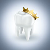Tooth with gold crown Royalty Free Stock Images
