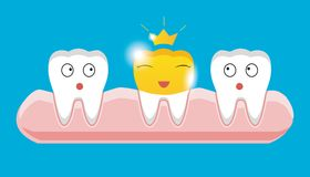 Tooth with golden dental crown icon in cartoon style. On a white background Stock Photo